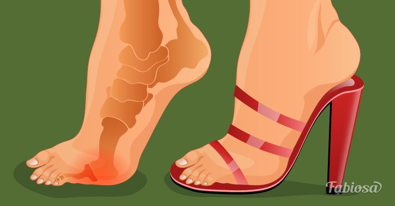 Если каблуки для вас - это боль, вот трюк, который все исправит!