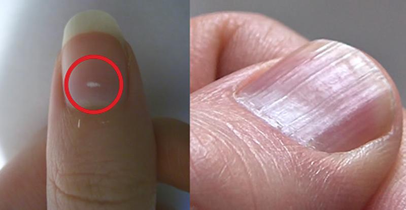Здоровье по ногтям рук фото