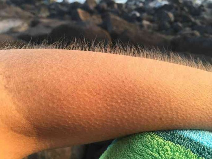 Звук от которого мурашки по коже