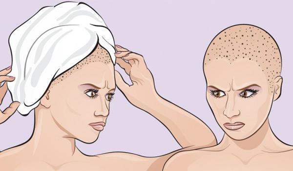Вы наносите непоправимый вред своим волосам, заматывая их в полотенце после душа!