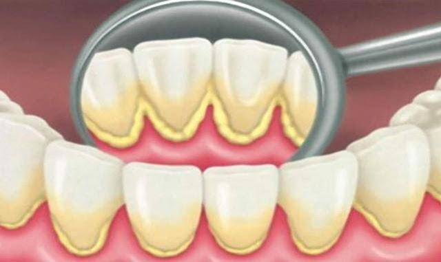 Вот как удалить зубной налет естественным способом за 5 минут без визита к стоматологу!