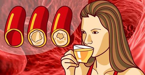Самый простой и эффективный способ очистить сосуды, а также предотвратить артериосклероз!