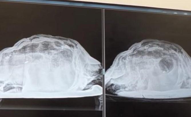 Врачи были в шоке, когда нашли мертвую черепаху в теле молодой британки