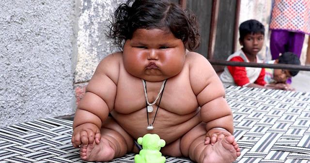 8-месячная девочка весит 17 килограммов: она не перестаёт толстеть