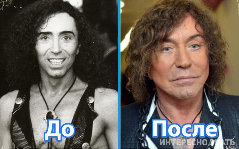 7 знаменитых российских мужчин, которые сделали неудачную пластику