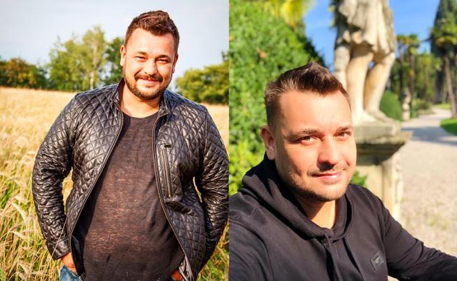 Cергей Жуков: до и после операции, фото.