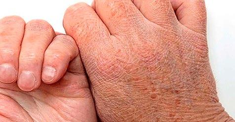 Сухость кожи может быть симптомом 4 очень серьёзных заболеваний! На это стоит обратить пристальное внимание!