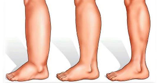Распухшие и болезненные ноги: 9 причин и 5 домашних рецептов!