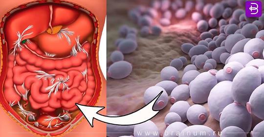 Этот грибок разрушает наше здоровье, особенно печень! Быстро избавиться от него поможет простое домашнее средство!