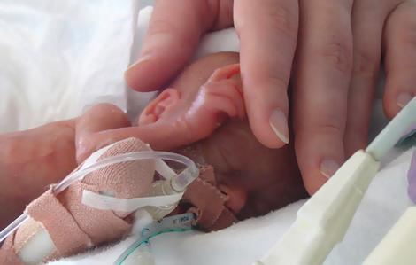 Эта малышка родилась мёртвой за 4 месяца до срока. Но через 8 минут случилось немыслимое!