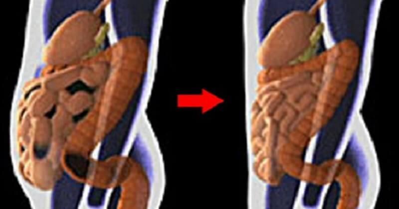 Токсины в жировых клетках — причина опухлости живота. Вот как очистить от них организм