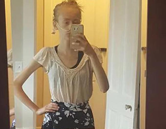 Девушка выиграла битву с анорексией и стала красоткой (фото)