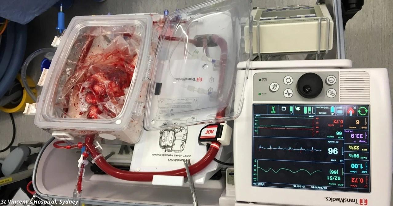 Врачи вернули к жизни «мёртвое» сердце, накачав его кровью и электролитами