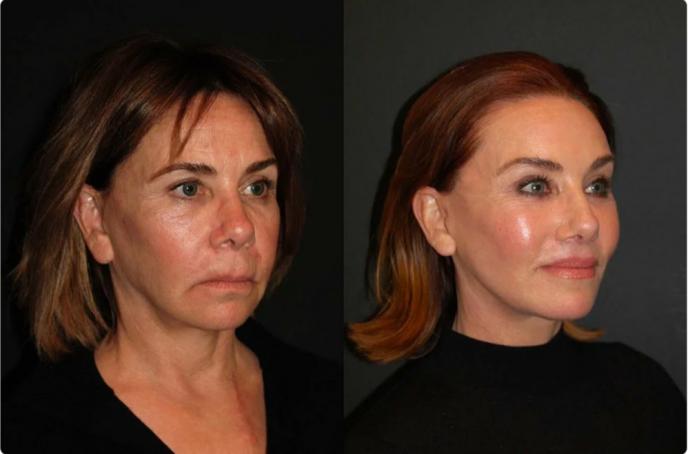Преображения обычных женщин после подтяжки лица
