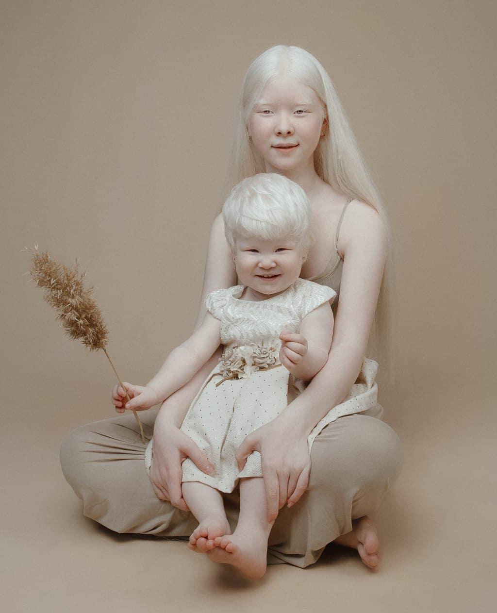 Сёстры-альбиносы родились с разницей в 12 лет и покорили мир моды своей уникальностью необычной внешностью