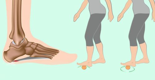 5 лучших способов для лечения подошвенного фасциита! Проверено!