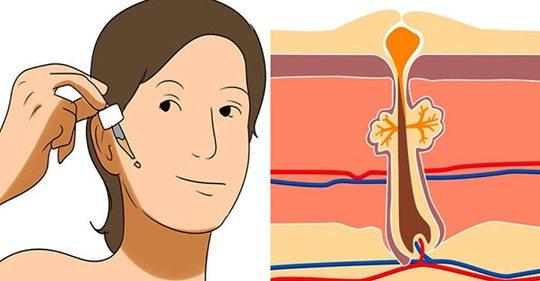 Эти 4 самых супер сильных средств сделают вашу кожу упругой, устранят рубцы, морщины и воспаление!
