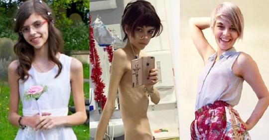 Девушка, которая весила как пятилетний ребенок, победила анорексию и стала звездой инстаграма