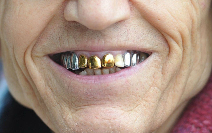 Откуда у советских людей страсть к золотым зубам