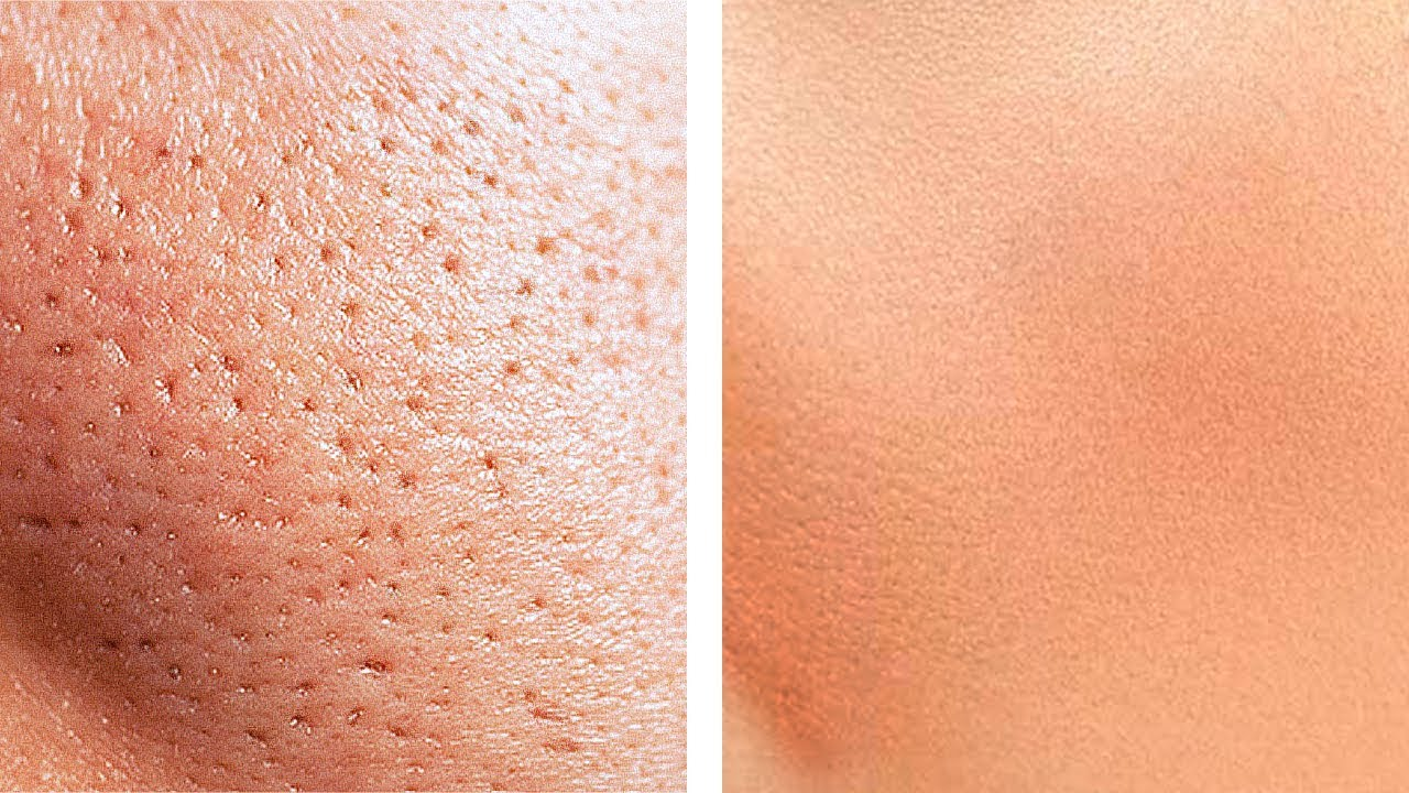 Уменьшить поры на лице в Coollaser clinic