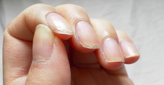 Именно поэтому появляются судороги и слоятся ногти!