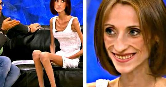 Как выглядит сейчас Анна Егрчукова, которая с весом в 26 килограмм обратилась на передачу «Пусть говорят»
