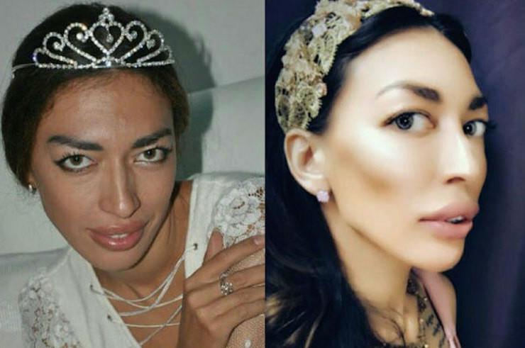 Каквыглядит женщина, потратившая 10миллионов рублей на«переделку» внешности