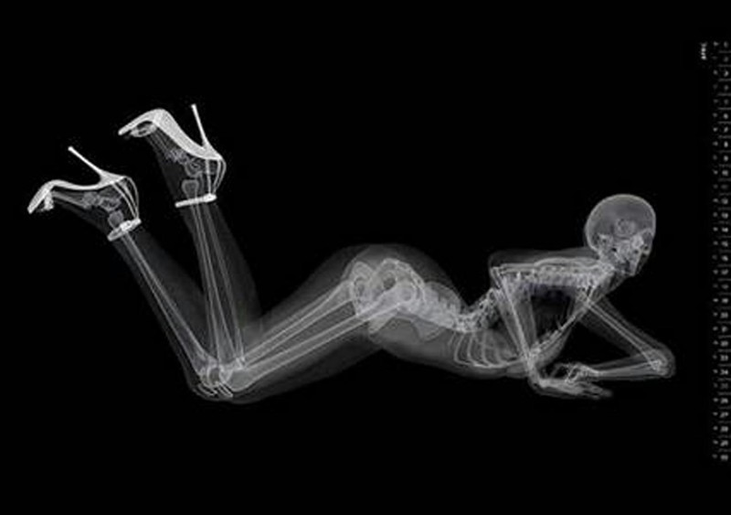 рентгеновская эротика